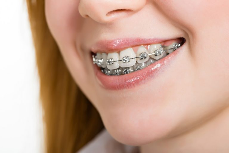 Types Of Materials Used In Braces